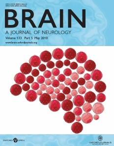 Brain. 2014;138(1):11-27.